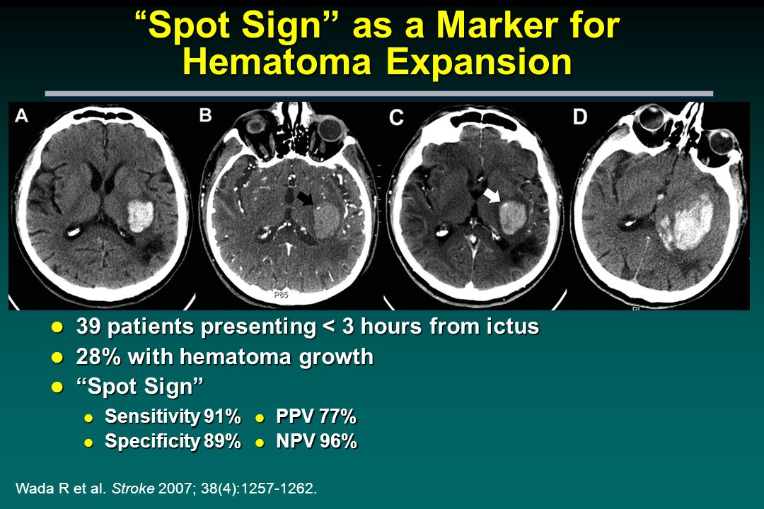 Spot Sign as a Marker for Hematoma Expansion l 39 patients presenting < 3 hours from ictus l 28% with hematoma growth l Spot Sign Wada R et al.