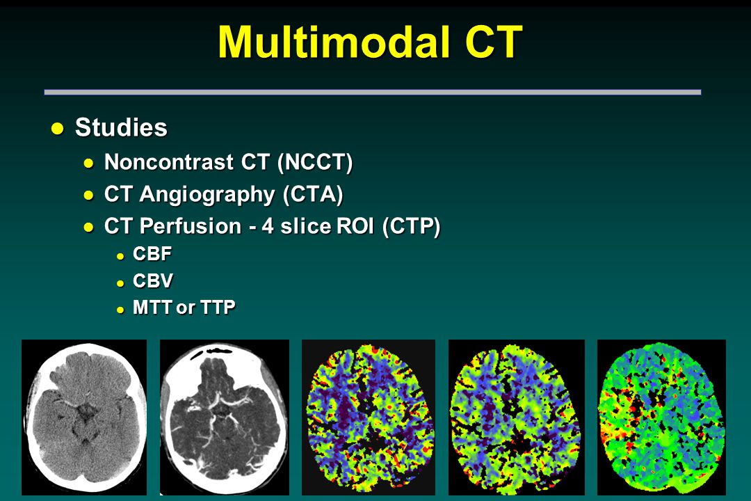 CT Perfusion l Tracks transient changes in brain parenchyma during the first passage of IV contrast l Allows quantitative assessment of CBF and CBV (MTT or TTP) l Except for dedicated software, no special equipment required l Quantitatively determined from a sequence of the time density curves of the passage of a small contrast bolus l Derived from postprocessing of axial source images obtained from continuous rapid scanning through a fixed levels