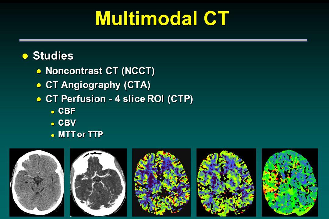 Multimodal CT l Studies l Noncontrast CT (NCCT) l CT Angiography (CTA) l CT Perfusion - 4 slice ROI (CTP) l CBF l CBV l MTT or TTP