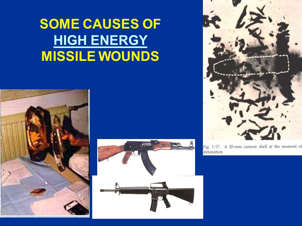 SOME CAUSES OF HIGH ENERGY MISSILE WOUNDS