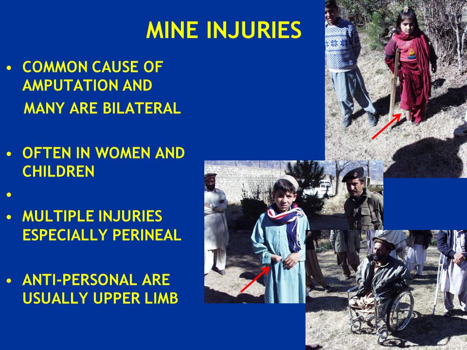 COMMON CAUSE OF AMPUTATION AND MANY ARE BILATERAL OFTEN IN WOMEN AND CHILDREN MULTIPLE INJURIES ESPECIALLY PERINEAL ANTI-PERSONAL ARE USUALLY UPPER LIMB MINE INJURIES