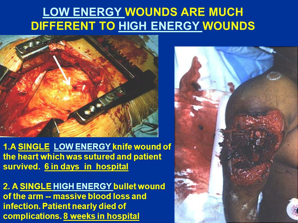 LOW ENERGY WOUNDS ARE MUCH DIFFERENT TO HIGH ENERGY WOUNDS 1.A SINGLE LOW ENERGY knife wound of the heart which was sutured and patient survived.