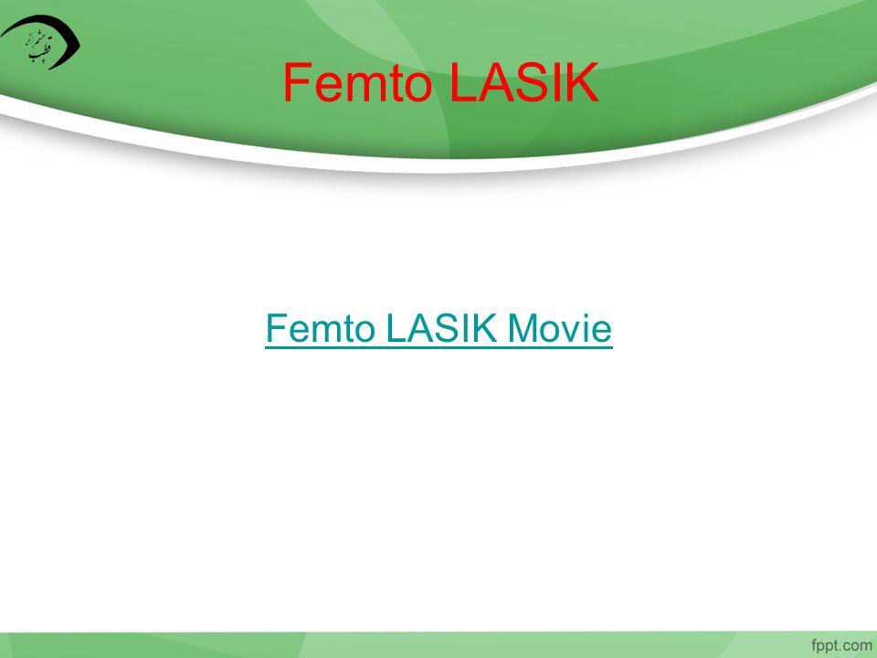 Femto LASIK Femto LASIK Movie