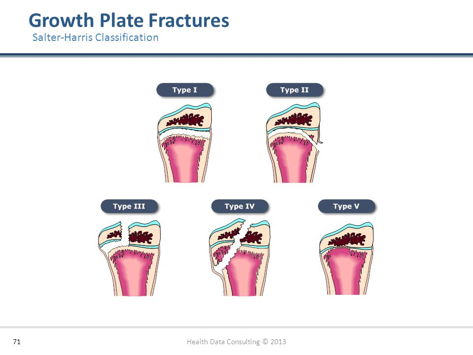 Growth Plate Fractures 71 Salter-Harris Classification Health Data Consulting © 2013