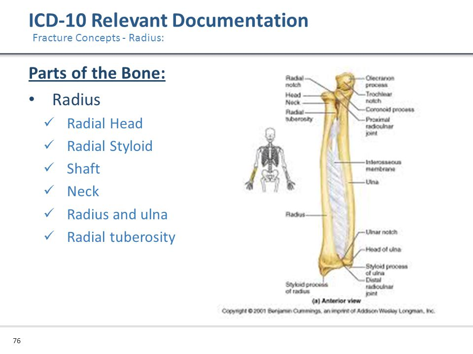 ICD-10 Relevant Documentation 76 Fracture Concepts - Radius: Parts of the Bone: Radius Radial Head Radial Styloid Shaft Neck Radius and ulna Radial tu