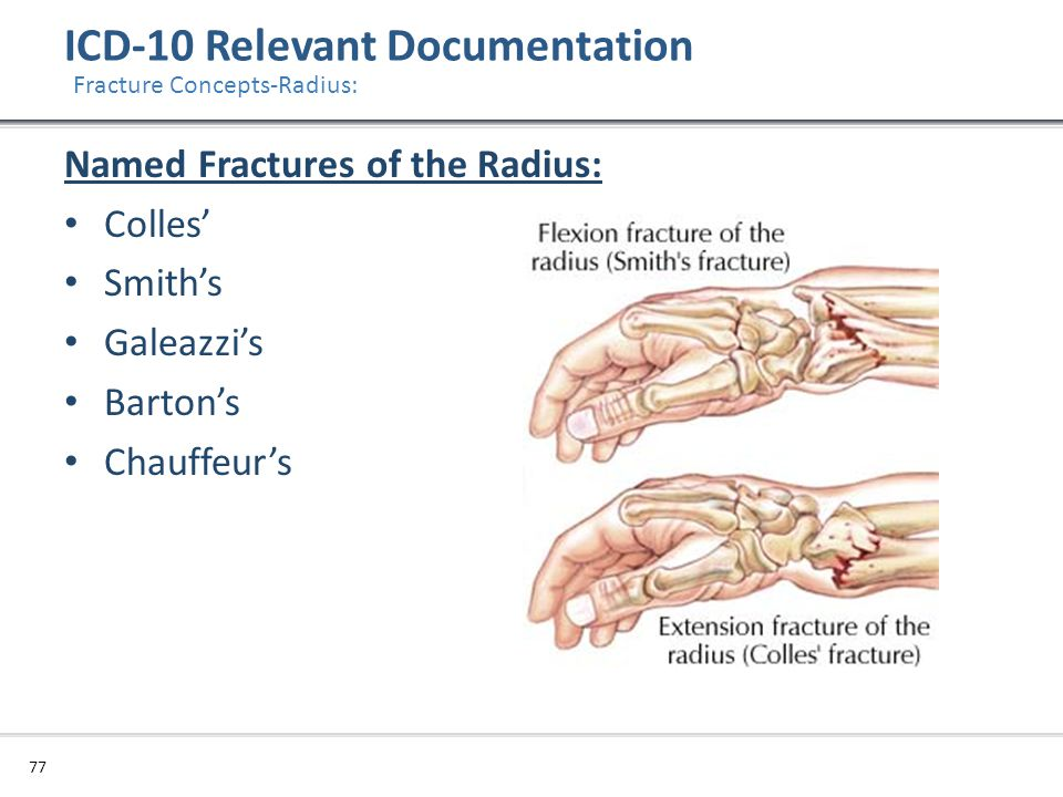 ICD-10 Relevant Documentation 77 Fracture Concepts-Radius: Named Fractures of the Radius: Colles' Smith's Galeazzi's Barton's Chauffeur's