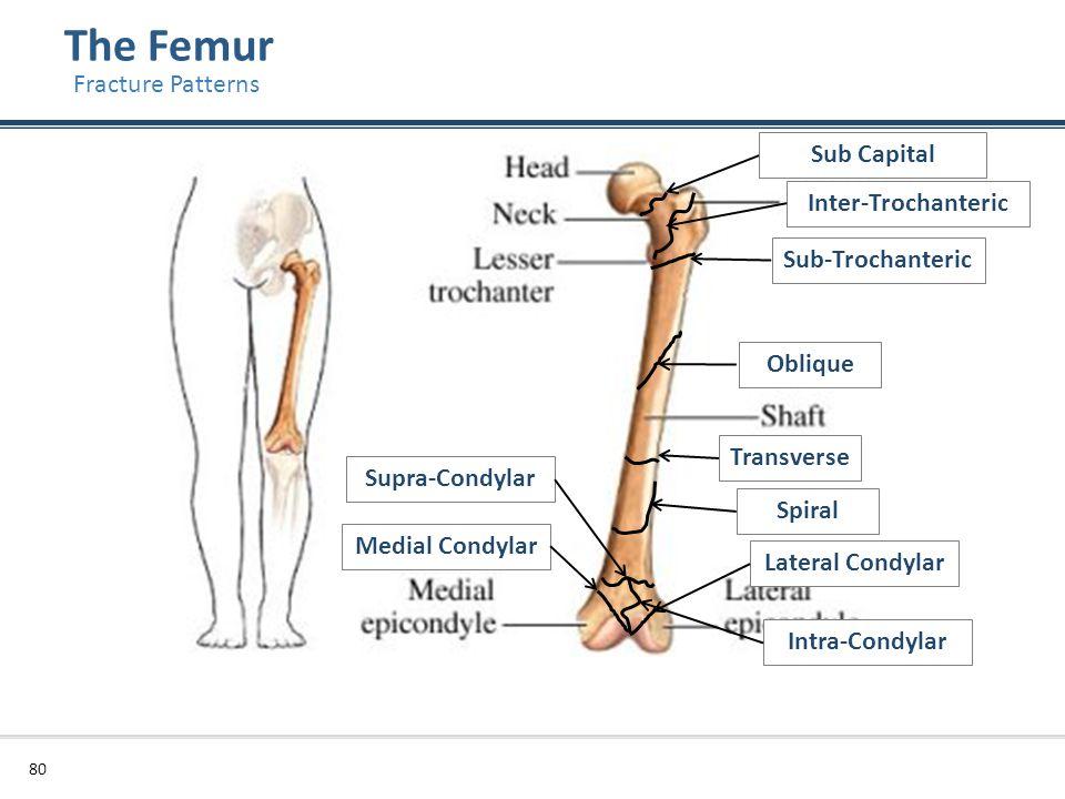 The Femur 80 Fracture Patterns Transverse Oblique Sub-Trochanteric Lateral Condylar Medial Condylar Supra-Condylar Sub Capital Inter-Trochanteric Spir