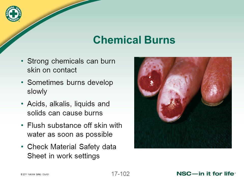 © 2011 National Safety Council 17-102 Chemical Burns Strong chemicals can burn skin on contact Sometimes burns develop slowly Acids, alkalis, liquids