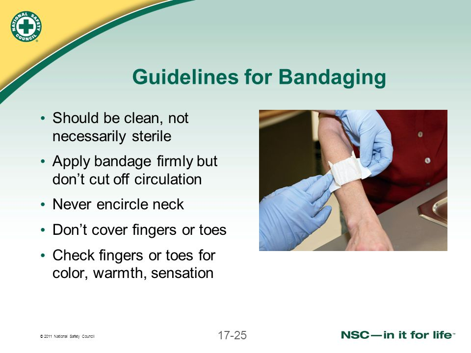 © 2011 National Safety Council 17-25 Guidelines for Bandaging Should be clean, not necessarily sterile Apply bandage firmly but don't cut off circulat