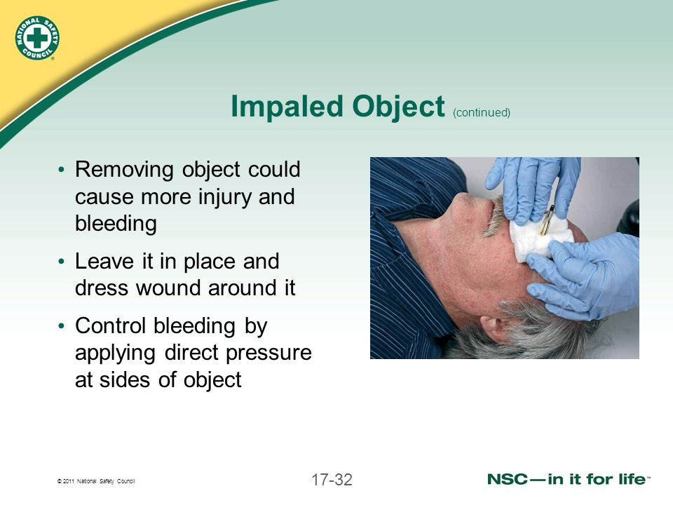 © 2011 National Safety Council 17-32 Impaled Object (continued) Removing object could cause more injury and bleeding Leave it in place and dress wound