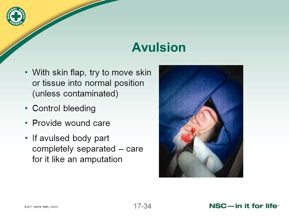 © 2011 National Safety Council 17-34 Avulsion With skin flap, try to move skin or tissue into normal position (unless contaminated) Control bleeding P