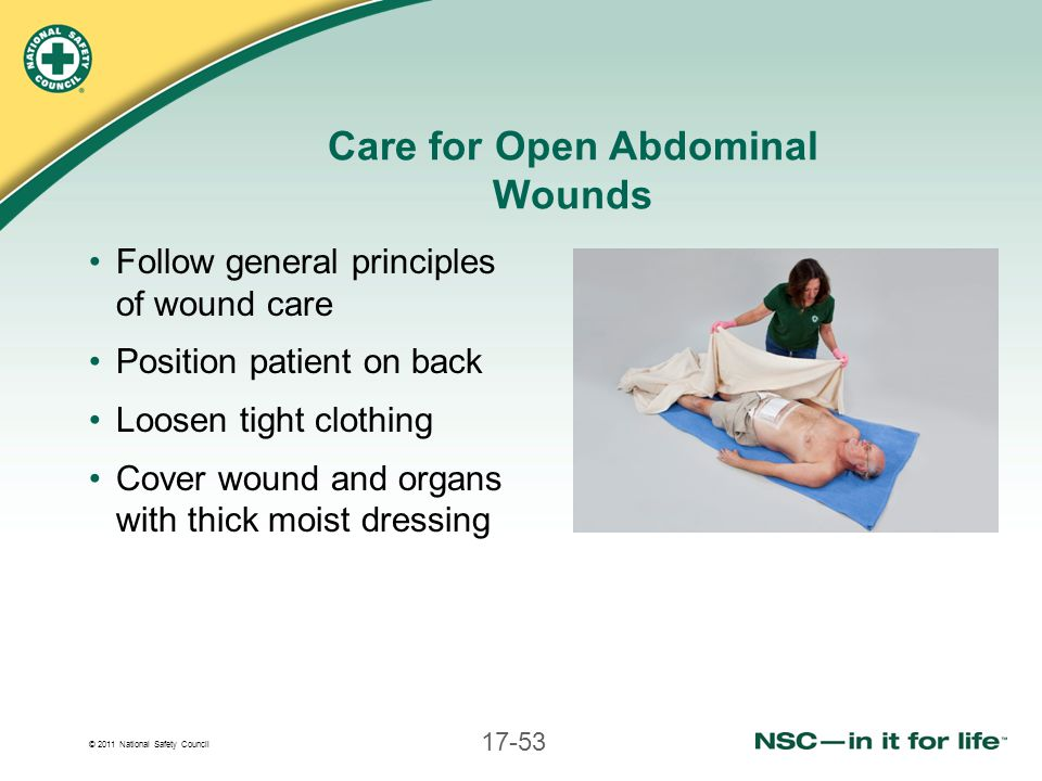 © 2011 National Safety Council 17-53 Care for Open Abdominal Wounds Follow general principles of wound care Position patient on back Loosen tight clot