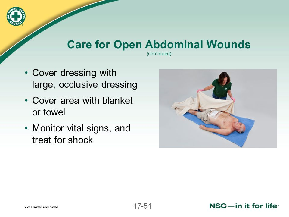 © 2011 National Safety Council 17-54 Care for Open Abdominal Wounds (continued) Cover dressing with large, occlusive dressing Cover area with blanket