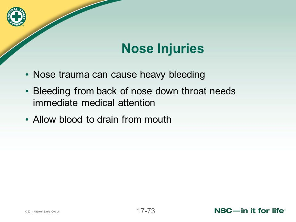 © 2011 National Safety Council 17-73 Nose Injuries Nose trauma can cause heavy bleeding Bleeding from back of nose down throat needs immediate medical