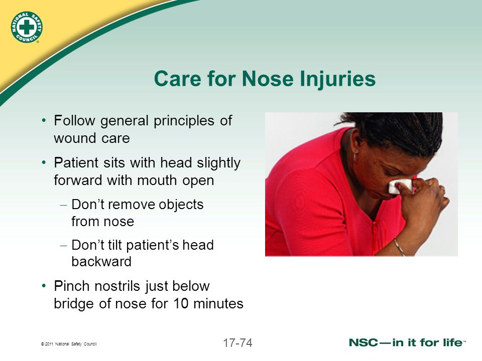 © 2011 National Safety Council 17-74 Care for Nose Injuries Follow general principles of wound care Patient sits with head slightly forward with mouth