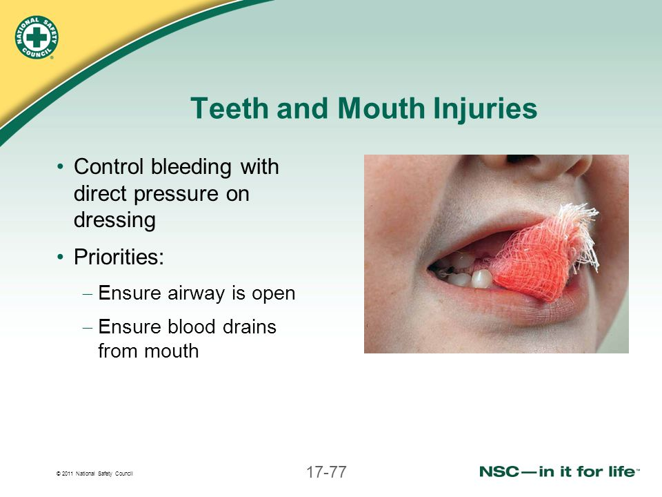 © 2011 National Safety Council 17-77 Teeth and Mouth Injuries Control bleeding with direct pressure on dressing Priorities:  Ensure airway is open 