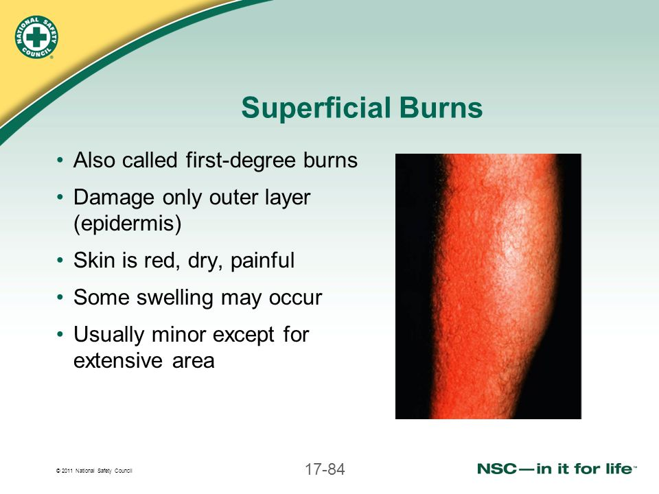 © 2011 National Safety Council 17-84 Superficial Burns Also called first-degree burns Damage only outer layer (epidermis) Skin is red, dry, painful So