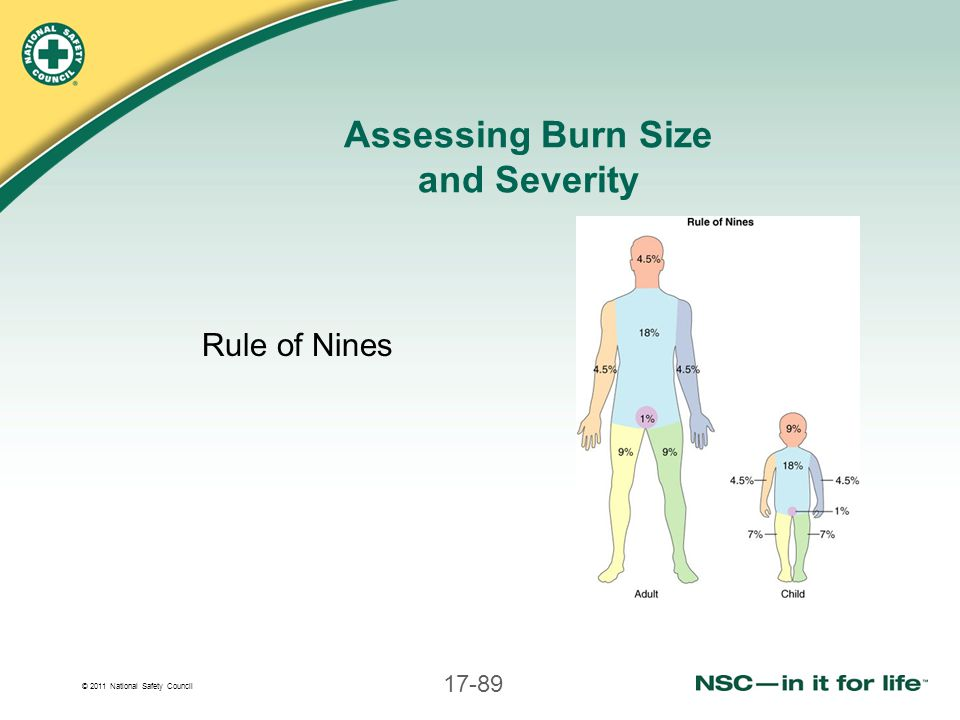 © 2011 National Safety Council 17-89 Assessing Burn Size and Severity Rule of Nines