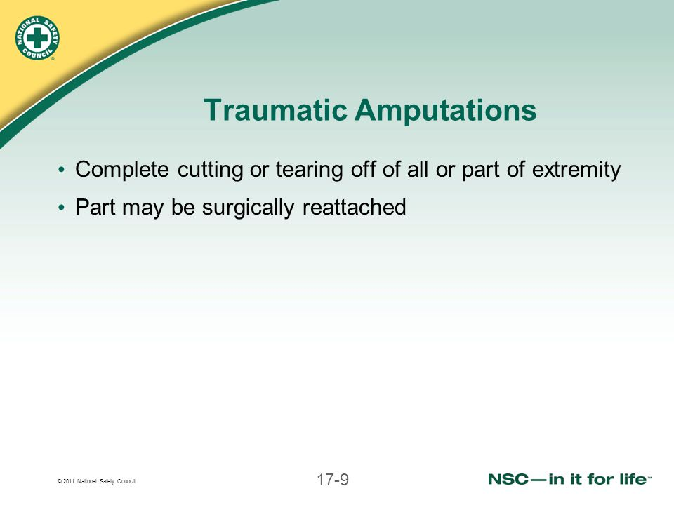 © 2011 National Safety Council 17-9 Traumatic Amputations Complete cutting or tearing off of all or part of extremity Part may be surgically reattache