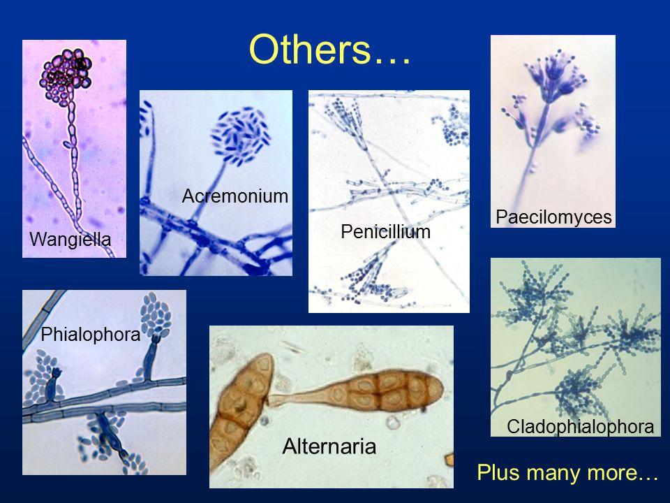 Others… Alternaria Paecilomyces Phialophora Cladophialophora Wangiella Plus many more… Acremonium Penicillium