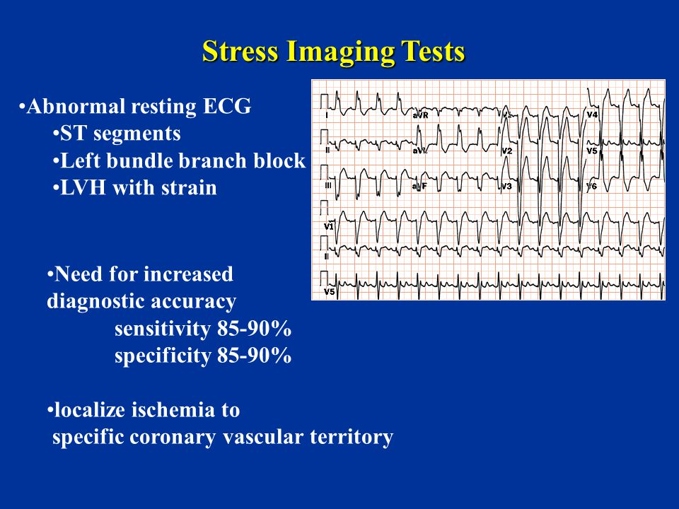 Stress Imaging Tests Abnormal resting ECG ST segments Left bundle branch block LVH with strain Need for increased diagnostic accuracy sensitivity 85-9