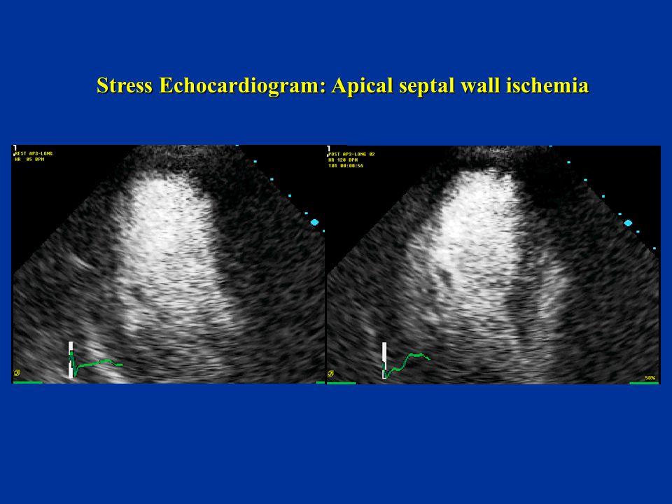 Stress Echocardiogram: Apical septal wall ischemia