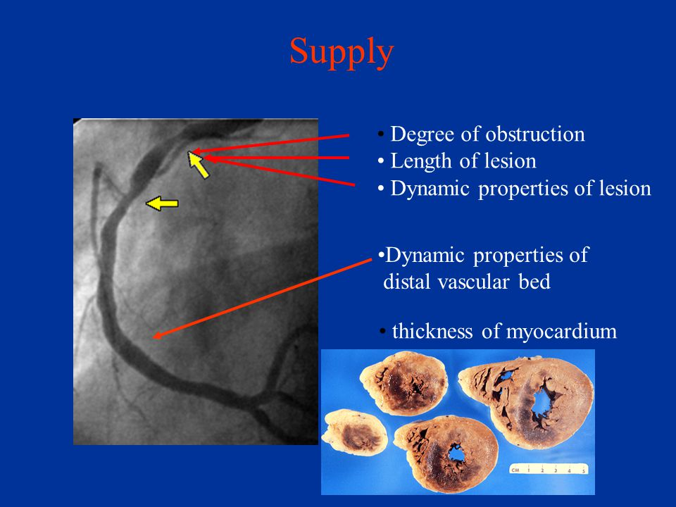 Supply Degree of obstruction Length of lesion Dynamic properties of lesion Dynamic properties of distal vascular bed thickness of myocardium