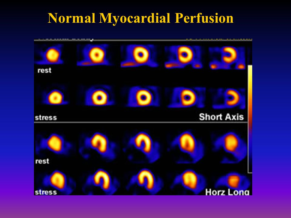 Normal Myocardial Perfusion