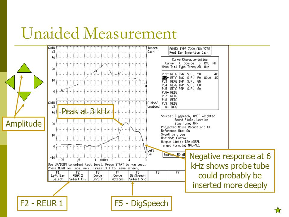 Unaided Measurement Peak at 3 kHz Negative response at 6 kHz shows probe tube could probably be inserted more deeply F2 - REUR 1F5 - DigSpeech Amplitude