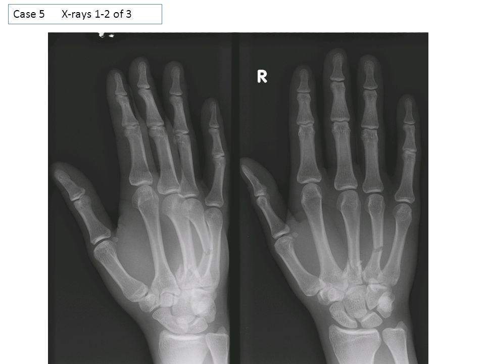 Case 5 X-rays 1-2 of 3