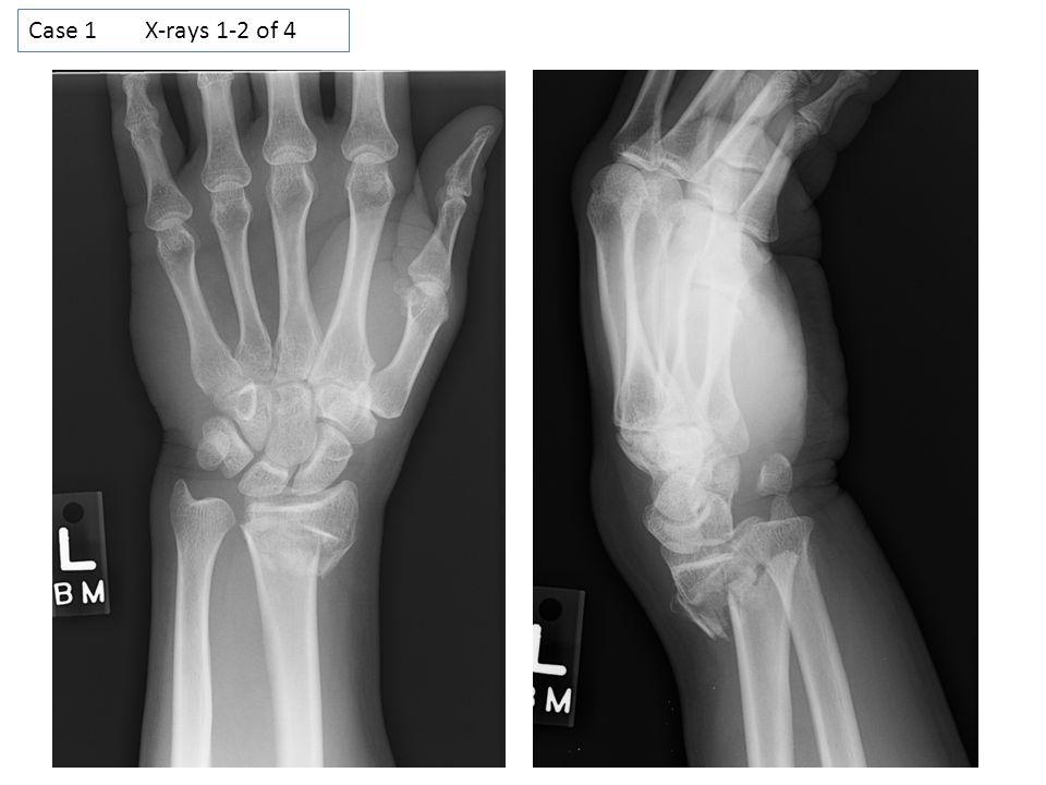Case 1 X-rays 1-2 of 4