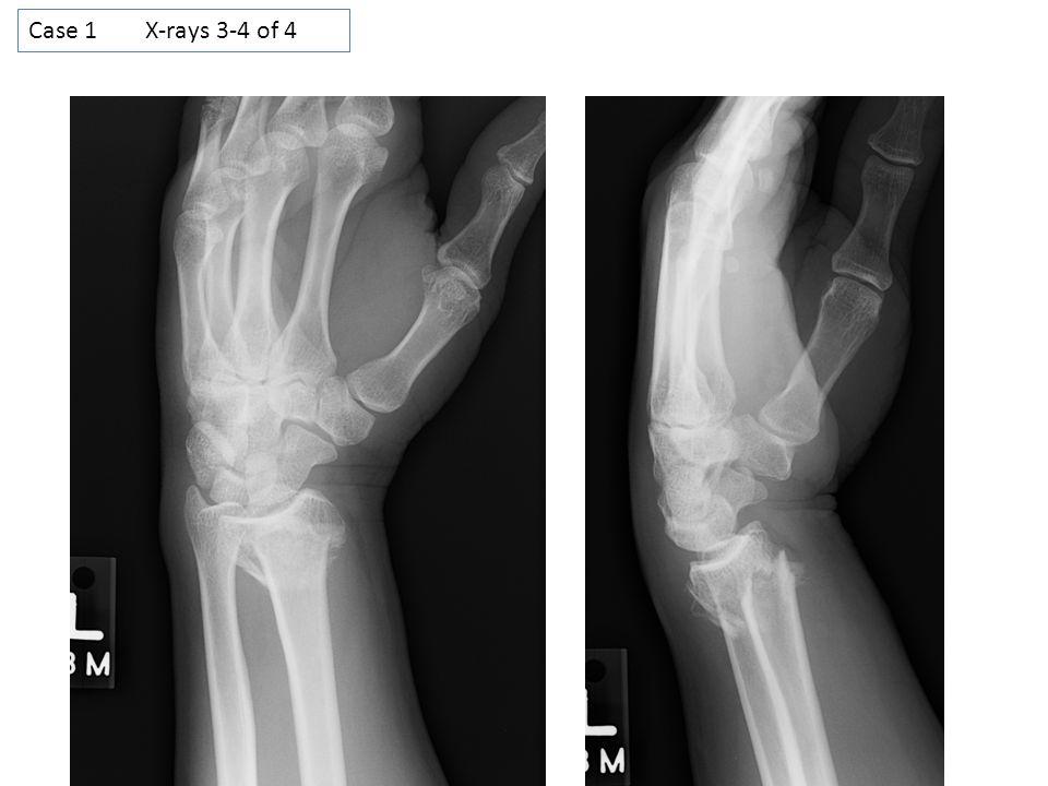 Case 1 X-rays 3-4 of 4