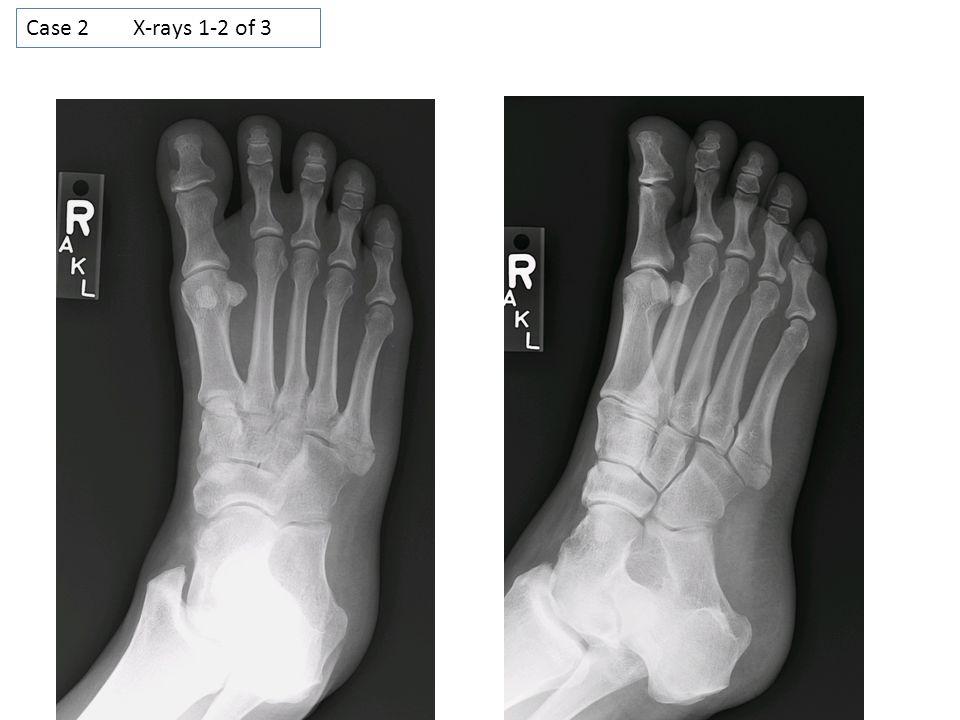 Case 2 X-rays 1-2 of 3
