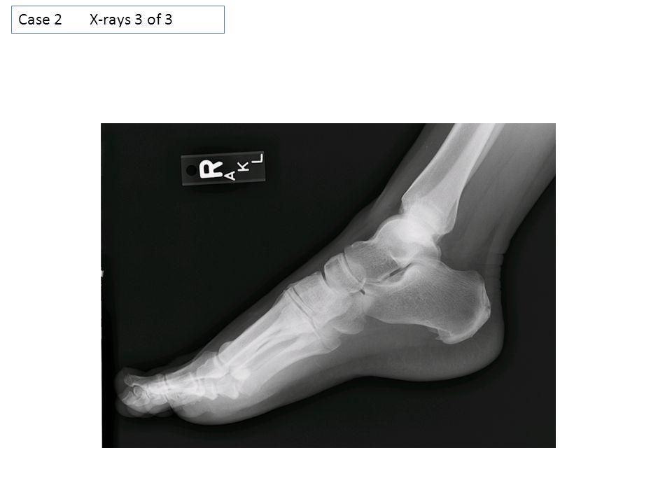 Case 2 X-rays 3 of 3