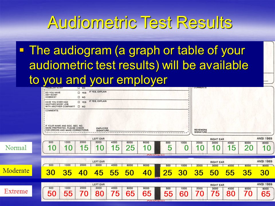Audiometric Test Results Normal Extreme 10  The audiogram (a graph or table of your audiometric test results) will be available to you and your employer 1015101525 10 50 1520 10 505570807565 5560 70 7580 70 65 Moderate 30 3540455550 40 2530 35 5055 35 30