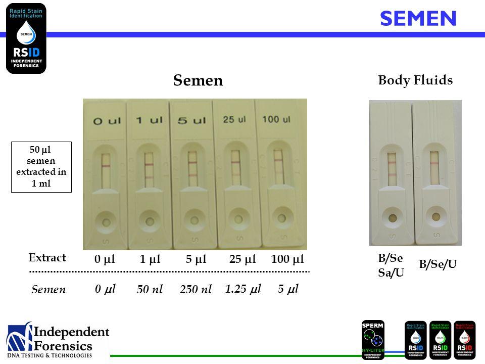 SPERM HYLITER B/Se/U Body Fluids B/Se Sa/U Semen 0  l1  l5  l25  l100  l Extract 50  l semen extracted in 1 ml SEMEN Semen 0  l 50 nl250 nl 1.25  l5  l