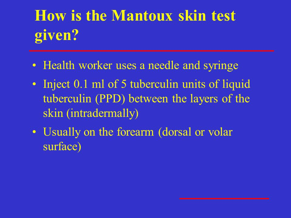 How is the Mantoux skin test given? Health worker uses a needle and syringe Inject 0.1 ml of 5 tuberculin units of liquid tuberculin (PPD) between the