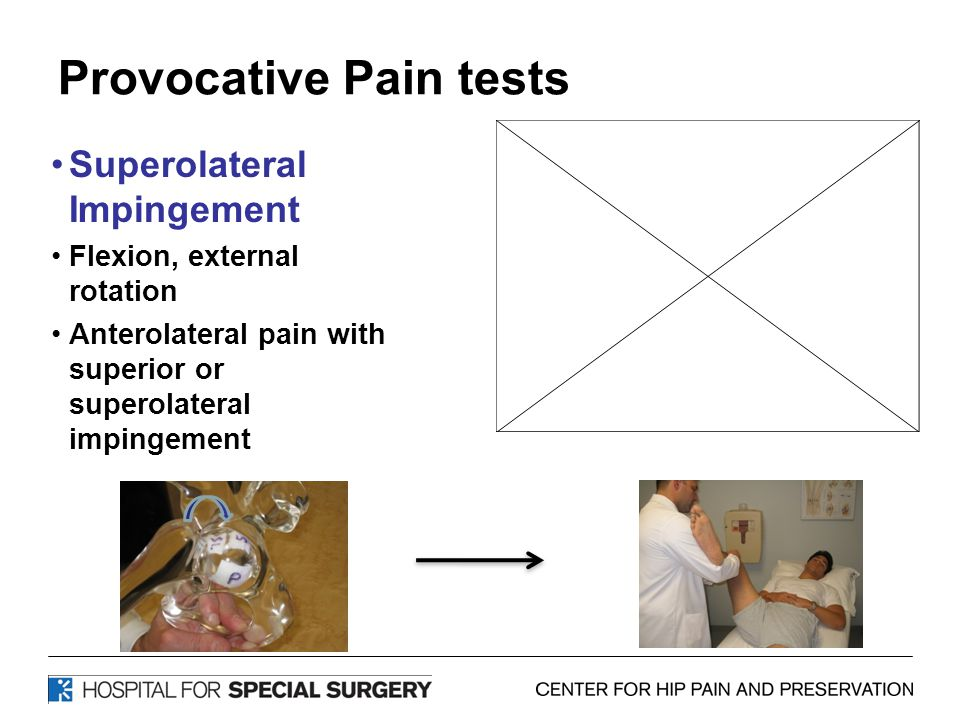 Provocative Pain tests Superolateral Impingement Flexion, external rotation Anterolateral pain with superior or superolateral impingement