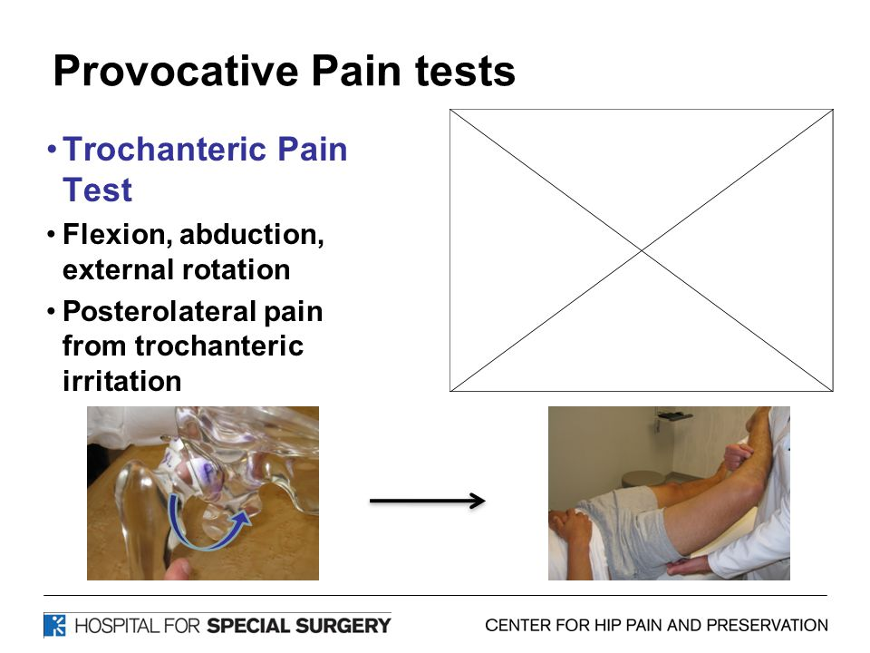 Provocative Pain tests Trochanteric Pain Test Flexion, abduction, external rotation Posterolateral pain from trochanteric irritation