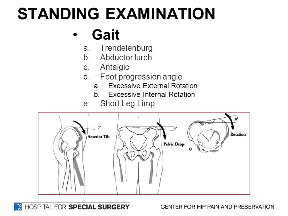 STANDING EXAMINATION Gait a.Trendelenburg b.Abductor lurch c.Antalgic d.Foot progression angle a.Excessive External Rotation b.Excessive Internal Rotation e.Short Leg Limp