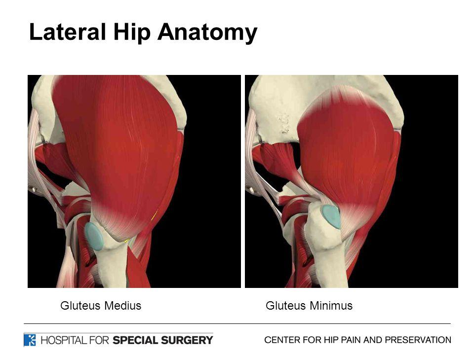 Lateral Hip Anatomy Gluteus MediusGluteus Minimus