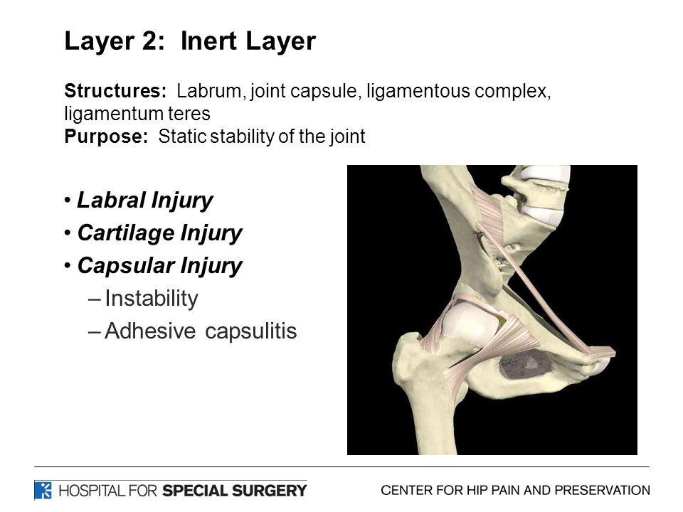 Layer 2: Inert Layer Structures: Labrum, joint capsule, ligamentous complex, ligamentum teres Purpose: Static stability of the joint Labral Injury Cartilage Injury Capsular Injury –Instability –Adhesive capsulitis