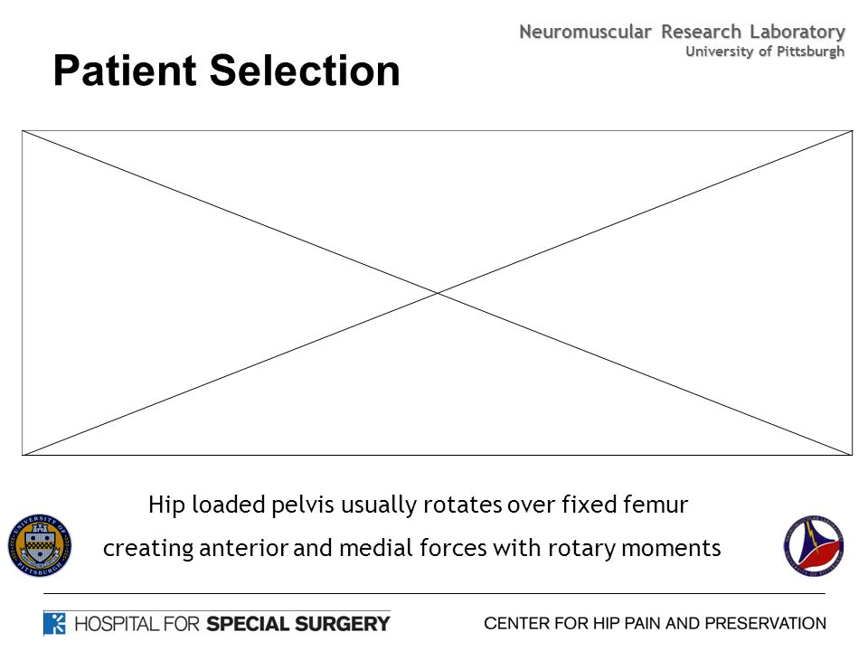 Patient Selection Hip loaded pelvis usually rotates over fixed femur creating anterior and medial forces with rotary moments Neuromuscular Research Laboratory University of Pittsburgh