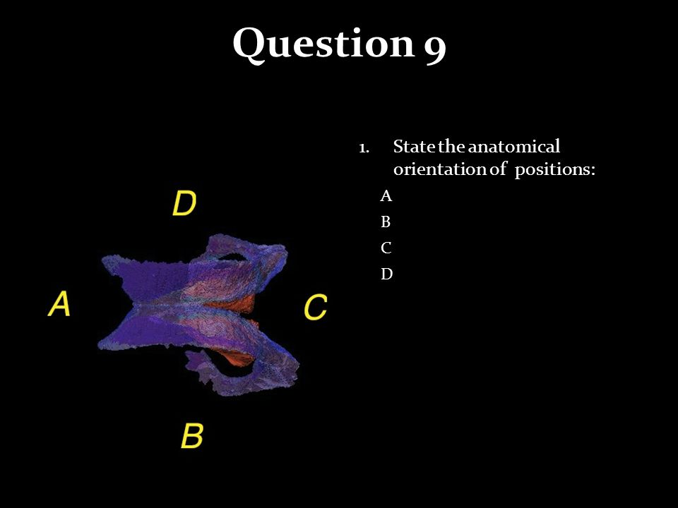 Question 9 1.State the anatomical orientation of positions: A B C D