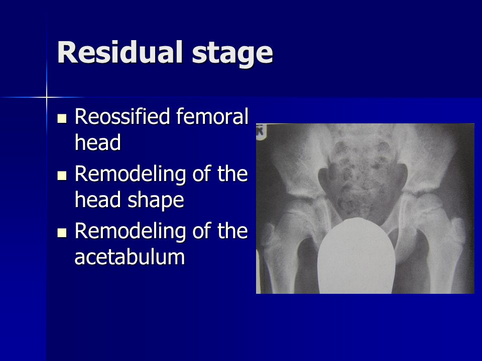 Residual stage Reossified femoral head Reossified femoral head Remodeling of the head shape Remodeling of the head shape Remodeling of the acetabulum Remodeling of the acetabulum