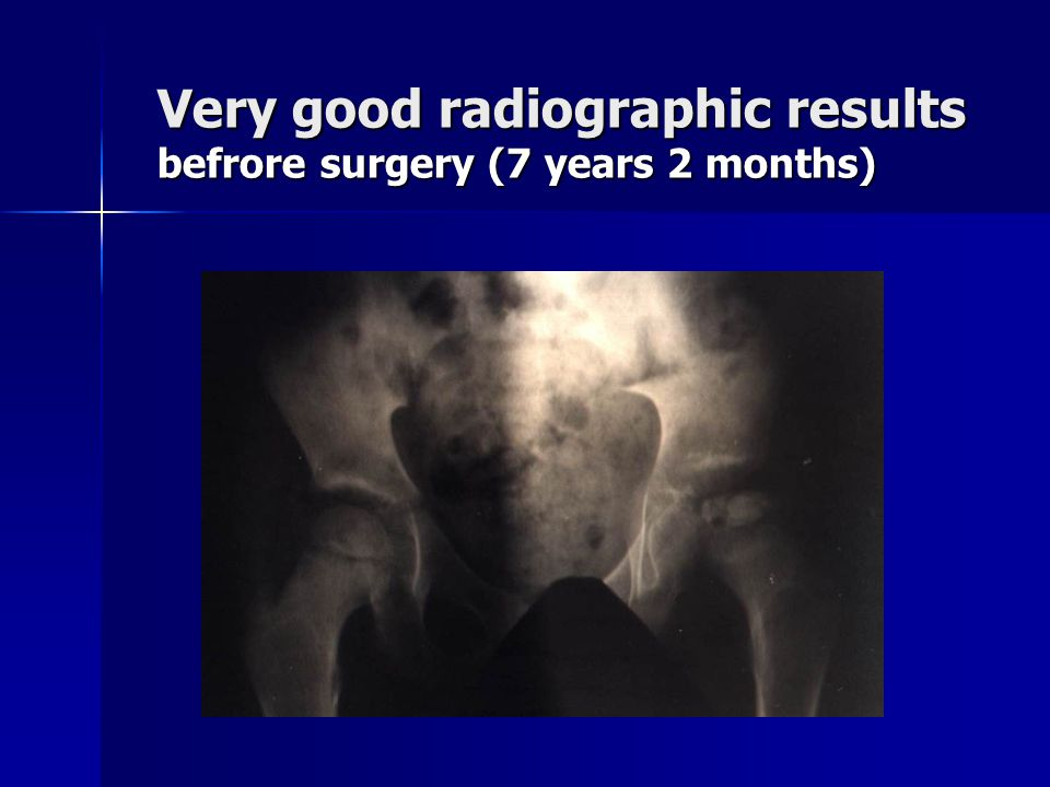 Very good radiographic results befrore surgery (7 years 2 months)‏