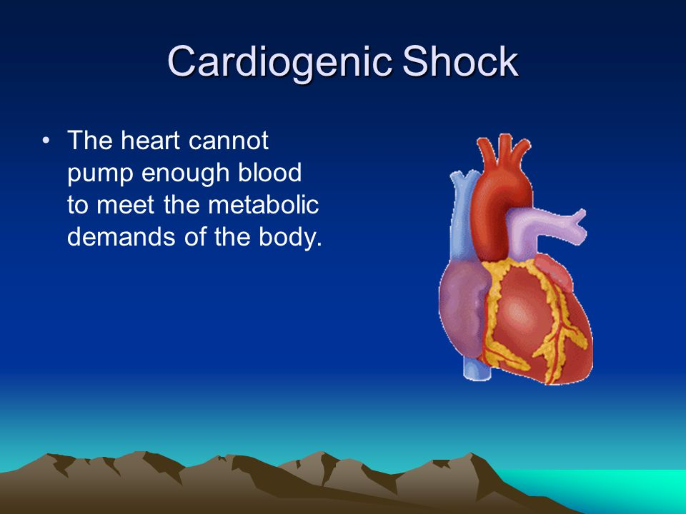 Cardiogenic Shock The heart cannot pump enough blood to meet the metabolic demands of the body.