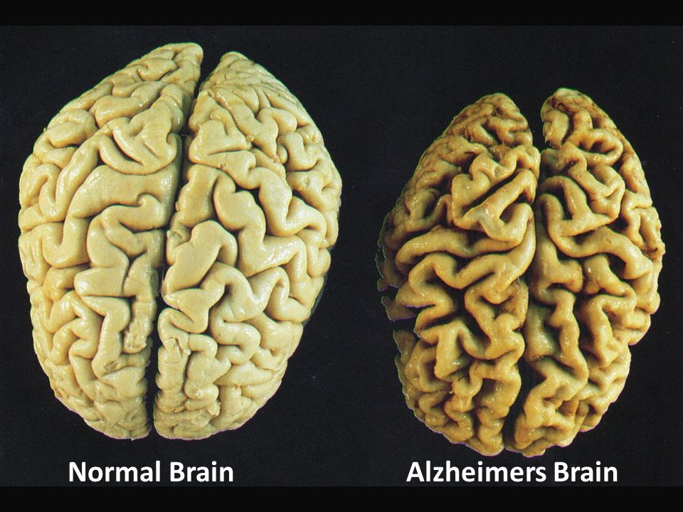 Normal BrainAlzheimers Brain