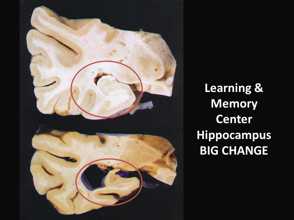 Learning & Memory Center Hippocampus BIG CHANGE