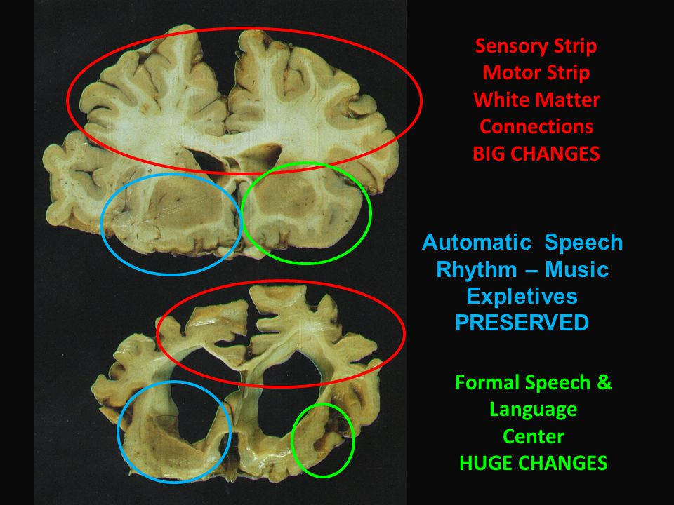 Sensory Strip Motor Strip White Matter Connections BIG CHANGES Formal Speech & Language Center HUGE CHANGES Automatic Speech Rhythm – Music Expletives PRESERVED